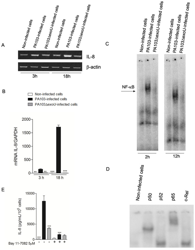 ExoU activates p65/p50 NF-κB and increases IL-8 expression and secretion in HMEC-1 capillary endothelial cells. In (A), representative agarose gels of three different semi-quantitative RT-PCR assays carried out in duplicate. In (B), graph shows the means ± SEM of values obtained in three Real Time qRT-PCR assays. **p