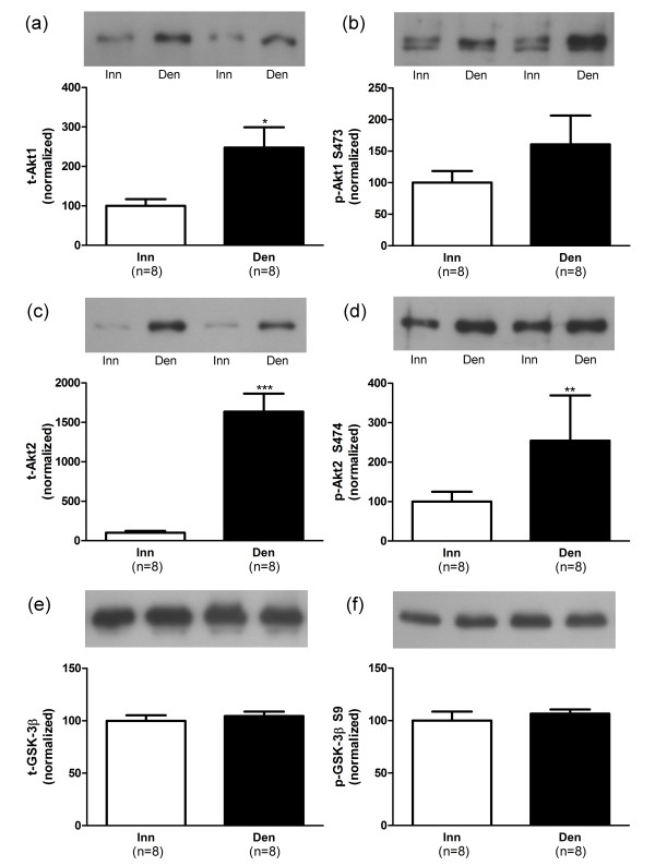 Akt and GSK-3β protein and phosphorylation levels in 6-days denervated atrophic anterior tibial muscle . Expression of Akt1, Akt2 and GSK-3β total protein (t-Akt1, a; t-Akt2, c and t-GSK-3β, e) and phosphorylated Akt1 protein (p-Akt1) at S473 (b), phosphorylated Akt2 protein (p-Akt2) at S474 (d) and phosphorylated GSK-3β protein (p-GSK-3β) at S9 (f) in 6-days denervated atrophic anterior tibial (Den) muscle compared to innervated (Inn) controls. Representative Western blots are shown together with densitometric quantifications. One innervated anterior tibial muscle sample was used as a reference sample and was included in all gels. All other samples were measured relative to this reference. The data were normalized to give an average signal of 100.0 in innervated muscles. Mean values ± standard error of the mean. *p