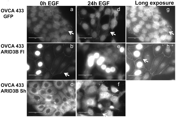 Localization of ARID3B splice forms by immunofluorescence. Immunofluorescence on OVCA 433 cells expressing GFP ( a, d, g ), ARID3B Fl ( b, e, h ), and ARID3B Sh ( c, f ). Cells are untreated (0 h EGF) ( a, b, c ) or treated with EGF for 24 h ( d, e, f ). Arrow indicates plasma membrane staining. Scale bars = 50 um. Panels g and h are long exposures of panels a and b in order to better visualize membrane associated ARID3B. Scale bar = 50 uM.