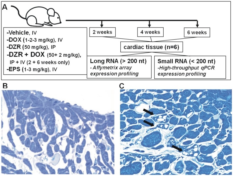 Study design and representative micrograph showing DOX-related vacuolation in the myocardium. (A) Six adult male rats were injected with the indicated doses of vehicle, doxorubicin (DOX), dexrazoxane (DZR), etoposide (EPS) or a combination of DOX and DZR for 2, 4 or 6 weeks. Cardiac tissue was excised and deep frozen for gene expression and microRNA profiling experiments. A representative micrograph of a toluidine blue stained myocardial section of a control (B) and of a DOX treated animal (C). Black arrows indicate sarcoplasmic micro- and macro- vacuolation of cardiomyocytes.