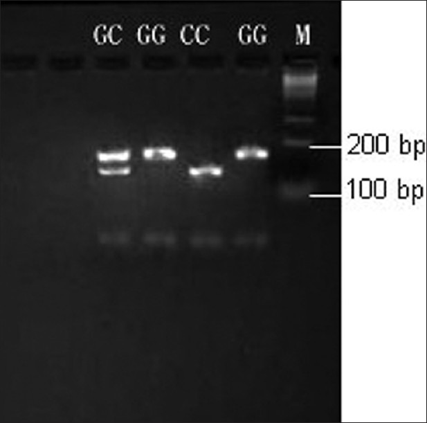 Polymerase chain reaction (PCR) products at D727E site. PCR products were cut by NlaIII endonuclease and separated by agarose gel electrophoresis