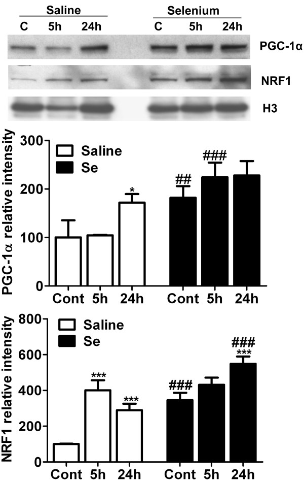 Selenium pretreatment increases protein levels of mitochondrial biogenesis markers, PGC-1α and NRF1. Representative Western blot and analysis of PGC-1α and NRF1 in control, 5- and 24 h of recirculation in saline and selenium pretreated groups (n = 4 each group). The results were normalized as relative % of control set at 100%. Data represents mean ± SD. *p