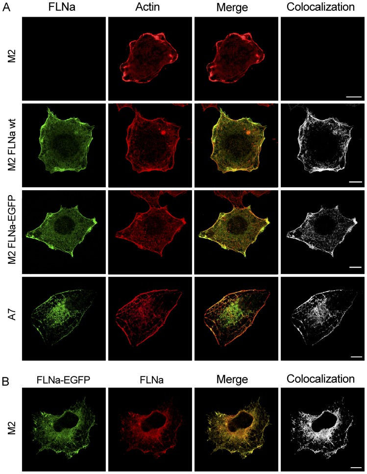FLNa-EGFP colocalizes with actin at the membrane and in fibres. ( A ) Confocal images of FLNa, FLNa-EGFP and actin expression in cells after immunostaining. M2 cells transiently transfected with pcDNA3.1-FLNa-EGFP or pREP4-FLNa and untransfected A7 and M2 cells, were seeded on top of glass coverslips, fixed, permeabilized, incubated with anti-FLNa and goat anti-mouse Alexa Fluor 488 and stained with rhodamine-phalloidin before mounting. ( B ) Confocal images of FLNa-EGFP expression in M2 cells transiently transfected with pcDNA3.1-FLNa-EGFP. Cells were seeded on top of glass coverslips, fixed, permeabilized and incubated with anti-FLNa and Texas Red goat anti-mouse. All images are from one single layer of the Z stacks. The colocalization between (green) and (red) was analyzed using Imaris colocalization software and is shown in white. Images are representative of at least three independent experiments. Scalebars (10 μm).