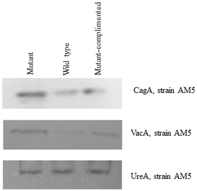 Western blotting for CagA and VacA protein levels in H. pylori strainsAM5 and AM5Δ hpyAVIBM .