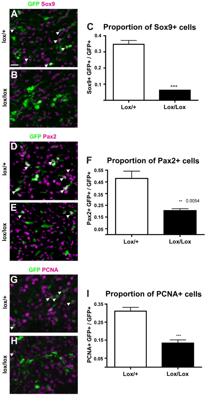 Effects of in vivo activation of Wnt/β-catenin signalling on development of VZ-derived cells. Apc lox/+ and Apc lox/lox embryos were electroporated with a Cre-GFP plasmid at E13.5 and analysed at E18.5. Electroporated cells and their progeny, marked by expression of GFP, were examined for expression of Sox9 (A–C), Pax2 (D–F) and PCNA (G–I). Immunohistochemical analyses were quantitated by counting the number of GFP+ cells expressing each marker (white arrows) as a proportion of total GFP+ cell numbers per section and comparing by Student's T-test between the two genotypes for each marker. For each test, n = 4, error bars = SEM, * = p