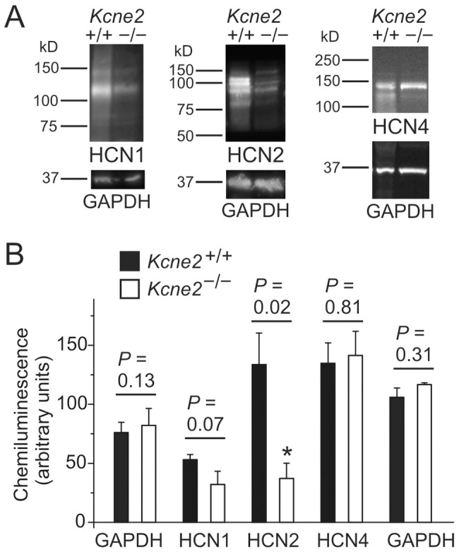 Kcne2 deletion down-regulates HCN1 and HCN2 protein expression in the brain. A , Exemplar chemiluminescence signals from western blots of whole brain lysates from Kcne2 +/+ and Kcne2 −/− mice, normalized to total protein concentration and probed with antibodies raised against HCN1, HCN2, HCN4 or GAPDH, as indicated. B , Mean chemiluminescence intensities for bands corresponding to known molecular weights for HCN1, HCN2, HCN4 and GAPDH from blots as in panel A , n = 3–4 mice per genotype. The cumulative GAPDH data on the left were obtained concomitantly with the HCN1 and HCN2 samples while the comparable GAPDH data on the right were obtained concomitantly with the HCN4 samples. *Significant difference between genotypes at 95% confidence interval. Error bars indicate SEM.