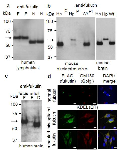 Abnormal fukutin protein in FCMD a-c, Immunoprecipitation analysis of fukutin protein in human lymphoblasts ( a ), both skeletal muscle and brain tissues from Hp/Hp mice ( b ), and brain tissue from FCMD patients ( c ). Closed arrow, abnormal fukutin. N, normal sample; F, FCMD patient sample. Hn, Hn/Hn mice; Hp, Hp/Hp mice; PI, preimmune serum. D, Duchenne muscular dystrophy (DMD) patient. d, The subcellular localization of fukutin. Top, normal fukutin; middle, mis-spliced fukutin; bottom, truncated fukutin. Stained with anti-FLAG (Left, to detect fukutin), anti-GM130 (middle, Golgi marker, top) and anti-KDEL (ER marker, middle and bottom), and merge (right, with DAPI stain). Scale bar, 10 μm.