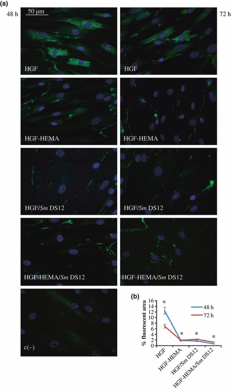 (a) Immunofluorescence analysis of pro-collagen I expression of co-cultured human gingival fibroblasts (HGF) cells in different experimental conditions: HGF, HGF-HEMA, HGF/ Sm DS12, HGF-HEMA/ Sm DS12 and negative control (c−) after 48 h (left panel) and 72 h (right panel) of treatment. Magnification 40×. Green fluorescence of fluorescein isothiocyanate (FITC) refers to pro-collagen I labelling; blue fluorescence of DAPI (4-6 diamino-2-phenyl-indol)-counterstains nuclei. (b) Graphic representation of densitometric analysis of pro-collagen-I-positive area (±SD) determined by direct visual counting of ten fields (mean values) for each of five slides per sample at 40× magnification. HGF shows a physiological pro-collagen I expression, labelling vanishes in all other experimental points. *48 h HGF % fluorescent area versus 48 h HGF-HEMA fluorescent area P