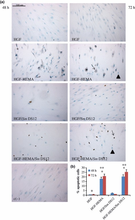 (a) TUNEL detection of co-cultured human gingival fibroblasts (HGF) apoptotic nuclei in different experimental conditions: HGF-HEMA, HGF/ Sm DS12, HGF-HEMA/ Sm DS12 and negative control (c−) after 48 h (left panel) and 72 h (right panel) of treatment. Blue staining and arrowheads indicate negative nuclei, and brown staining and arrows indicate positive nuclei. Magnification 20×. (b) Graphical representation of TUNEL analysis. Five slides have been examined per sample. Apoptotic cells have been counted out of a total cell number and expressed as percentage. Physiological levels of apoptotic cells can be detected in HGF and HGF/ Sm DS12, and HGF-HEMA shows an increase in apoptotic nuclei percentage, more evident in HGF-HEMA/ Sm DS12. Values represented in the graph are means (±SD) n = 3 for all groups. *48 h HGF % apoptotic nuclei versus 48 HGF-HEMA % apoptotic nuclei P