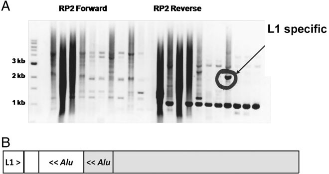 Structure of L1 insertion artifacts. A: Fractionation of amplicons from the RP2 target by agarose gel electrophoresis. Multiple PCR products were observed in each lane. Only one product (circled) was positive by L1-specific Southern blot hybridization. B: Structure of the L1-positive DNA fragment as established by DNA sequencing. The amplicon consisted of the 3′ end of a human specific L1 element and its flanking sequences mapped to chromosome 17 (white boxes), fused to the RP2 target on chromosome X (gray boxes). The fusion junction most likely occurred in the A-rich linker region found between the monomers of an AluSx element (gray box) in the RP2 target and an AluSg element (white box) at the chromosome 17 locus, thus forming an intact chimaeric Alu element. The 5′–3′ orientation of the repeat sequences is indicated by