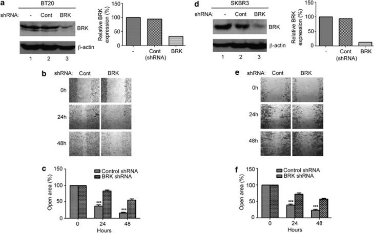 Stable knockdown of BRK significantly suppresses migration of breast cancer cells in wound-healing assays. Stable BRK knockdown were performed on parental breast cancer cell lines, BT20 and SKBR3 using shRNA lentiviral vector plasmids from Santa Cruz biotechnology according to the manufacture's protocol. ( a , d ) Efficient knockdown of BRK in breast cancer cells. BT20 and SKBR3 cells were transfected with a GFP-expressing plasmid or control shRNA plasmid or an shRNA-BRK plasmid using the PEI transfection method (See 'Materials and methods'). The GFP-control plasmid (lane 1, right and left panels) allowed the confirmation of the transduction efficiency by expressing GFP, detectable by fluorescence microscopy. The control shRNA plasmid (lanes 2) encode a scrambled shRNA sequence, which does not lead to mRNA degradation. BRK-shRNA lentiviral vector plasmid (lanes 3) comprises at least three lentiviral vector plasmids target-specific 19–25 nucleotides in shRNAs designed to knockdown BRK gene expression. Transfected cells were selected using puromycin. ( b , e ) BRK knockdown significantly suppresses migration of both BT20 and SKBR cells. The stable knockdown cells were analyzed for cell migration using the wound-healing assay in 6-well plates as described in Figure 3 legend. ( c , f ) The open area (scratch) was quantified with TScratch software. 49 The P -values were set at *** P ⩽0.0001 for statistically significance.