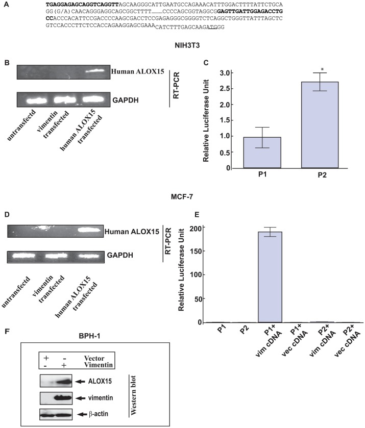 Promoter activities of ALOX15 variants in NIH3T3 cells and MCF-7 cells. Vimentin binds to ALOX15 promoter ( A ) ALOX15 promoter sequence. Primers used for this study and alternative alleles of rs2255888 are shown in bold. (G/A) in bold denotes SNP rs2255888 position. ( B ) Qualitative measurement of human ALOX15 (upper panel) and GAPDH (lower panel) gene expression by RT-PCR in NIH3T3 cells. ( C ) Luciferase activities of P1 and P2 transfected NIH3T3 cells was measured after 24 h. *denotes p = 2×10 −5 vs. P2. The results are the average of two independent transfections performed in triplicate ±S.E. ( D ) Human ALOX15 (upper panel) and GAPDH (lower panel) gene expression by RT-PCR in MCF-7 cells in presence of vimentin. ( E ) Luciferase activities of P1 and P2 transfected MCF-7 cells were measured after 24 h. The experiments were done in triplicates. **denotes p