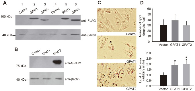 GPAT2 overexpression increased TAG storage in CHO-K1 cells. CHO-K1 cells were transiently transfected with pcDNA3.1 empty vector (control), pcDNA3.1-GPAT1 (GPAT1) or pcDNA3.1-GPAT2 (GPAT2) constructs tagged with a FLAG epitope (Lanes 1–3 and 4–6 correspond to two different transient transfections). The expression of GPAT1 and GPAT2 was confirmed by western blot. Total particulate protein (50 µg) from GPAT1, GPAT2 and control cells was probed with anti-FLAG (A) and anti-GPAT2 (B) antibodies. The molecular mass of the expressed protein was 90 kDa (GPAT1) and 80 kDa (GPAT2). The membranes were probed with anti-β-actin antibody as a loading control. C) Lipid droplets were visualized in control, GPAT1, and GPAT2-overexpressing CHO-K1 cells by Oil-Red O staining. D) The average size of cellular lipid droplets and the average number of lipid droplets in each cell were quantified by Image Pro plus v5.1 software. Data represent mean ± SD of three independent experiments. (* p