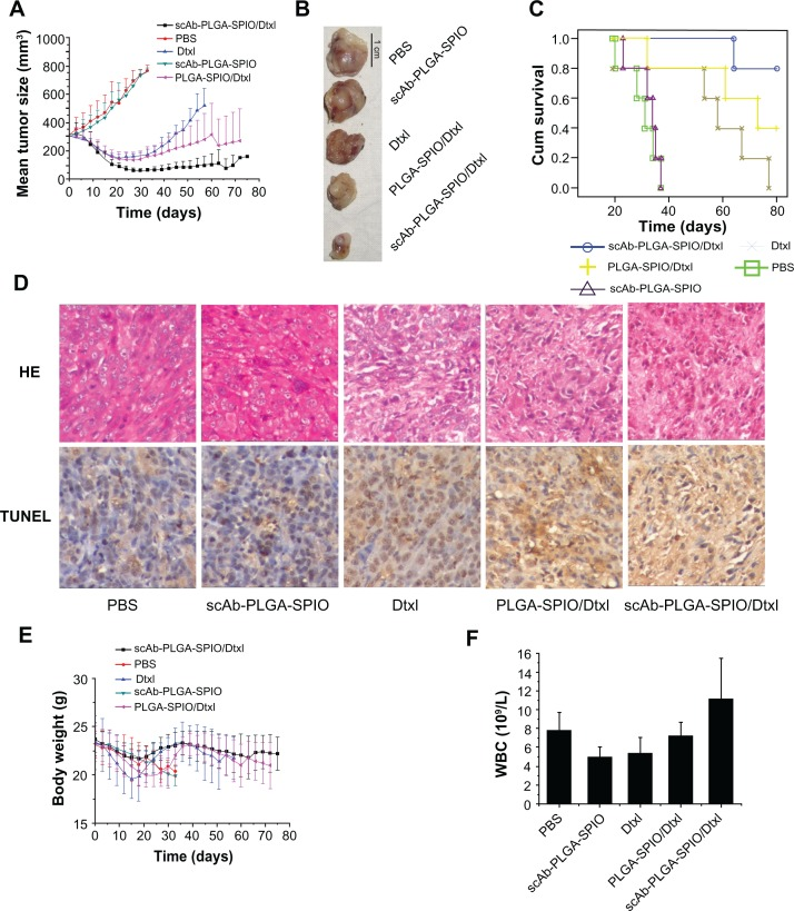 scAb-PLGA-SPIO/docetaxel demonstrated a superior outcome in a PC3M xenograft animal model. ( A ) Volumes of PC3M carcinoma in different groups. ( B ) Representative PC3M tumors excised from different groups. ( C ) Kaplan–Meier survival curve demonstrates that scAb-PLGA-SPIO/docetaxel significantly increased the lifespan of the mice. ( D ) Hematoxylin-eosin staining and terminal transferase uridyl nick-end labeling (TUNEL) staining of excised median tumors at 100× magnification. Histological staining was evaluated by two independent pathologists. Nuclei with dark brown horseradish peroxidase staining indicates apoptosis. ( E ) Body weight of the nude mice in different groups. ( F ) Effect of different treatments on the white blood cell counts at the endpoint of observation. Note: The results are shown as the mean ± standard error of the mean (n = 5). Abbreviations: Dtxl, docetaxel; PLGA, poly(D,L-lactic-co-glycolic acid); SPIO, superparamagnetic iron oxide; PBS, phosphate-buffered solution.