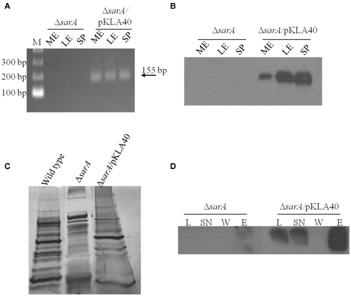 SarA binds mRNA in vivo . ( A) RT-PCR based detection of c-Myc-SarA transcript expression in Δ sarA and Δ sarA harboring plasmid pKLA40 harboring a c-Myc-SarA construct under control of the sarA P1 promoter during mid-exponential (ME), late-exponential (LE), and stationary (SP) phase growth. ( B) Western blotting based detection of c-Myc-SarA chimeric protein from sarA and Δ sarA harboring plasmid pKLA40; lysates collected during mid-exponential (ME), late-exponential (LE), and stationary (SP) phase growth. (C) SDS-PAGE and silver staining of exoproteins purified from wild type, Δ sarA and Δ sarA harboring plasmid pKLA40 stationary phase culture supernates. (D) RNA immunoprecipitation (RIP) was performed by capturing c-Myc-SarA protein cross-linked to nucleic acids. Successful immunoprecipitation was confirmed by Western blotting of cell lysate (L), lysate supernate (SN), wash (W), and elution (E) fractions with anti-c-Myc antibody.