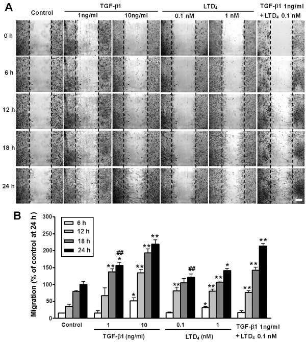 Time-dependent migration of live astrocytes after exposure to TGF-β1 and LTD 4 . Live astrocytes were continuously monitored under a videomicroscope after exposure to TGF-β1 or/and LTD 4 . ( A ) Representative images showing astrocyte migration traced by videomicroscopy at 6, 12, 18 and 24 h after scratching. Scale bar, 200 μm. ( B ) TGF-β1 and LTD 4 concentration- and time-dependently accelerated migration. When TGF-β1 (1 ng/ml) combined with LTD 4 (0.1 nM), the effect at 24 h was more potent than that of TGF-β1 or LTD 4 alone. Data are reported as mean ± S.E.M.; n = 3; * P