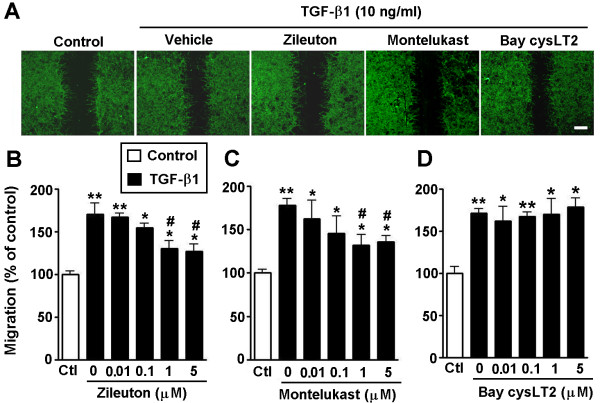Effects of a 5-LOX inhibitor and CysLT receptor antagonists on TGF-β1-induced migration in astrocytes. ( A ) Photomicrographs showing TGF-β1 (10 ng/ml)-induced astrocyte migration 24 h after treatment with the 5-LOX inhibitor zileuton, the CysLT 1 R antagonist montelukast and the CysLT 2 R antagonist Bay cysLT2 (1 μM). Scale bar, 400 μm. ( B-D ) TGF-β1-induced migration inhibited by 0.01 to 5 μM zileuton ( B ) and montelukast ( C ), but not Bay cysLT2 ( D ). Data are reported as mean ± S.E.M.; n = 8; * P