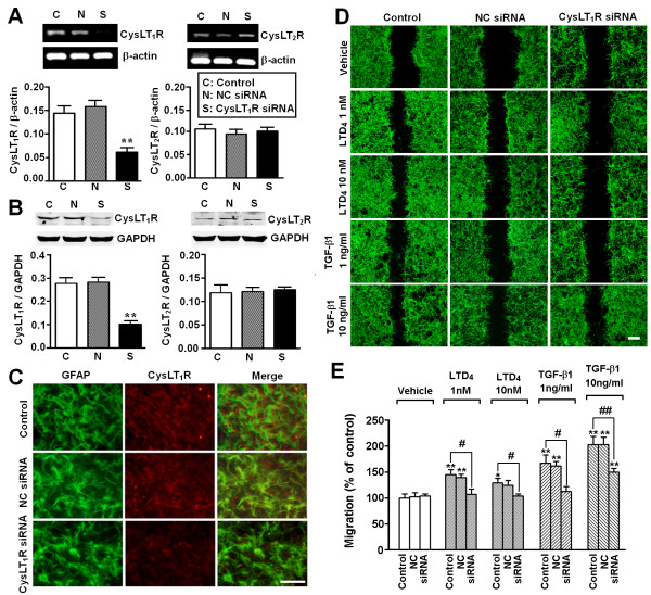 Effect of CysLT 1 R siRNA on LTD 4 - and TGF-β1-induced migration in astrocytes. ( A, B ) RT-PCR and Western blotting results showing inhibition of CysLT 1 R, but not CysLT 2 R, mRNA ( A ) and protein expression ( B ) by CysLT 1 R siRNA but not by negative control (NC) siRNA. ( C ) Double immunofluorescence staining showing inhibition of CysLT 1 R protein expression by CysLT 1 R siRNA in GFAP-positive astrocytes. ( D ) Photomicrographs showing that the astrocyte migration induced by LTD 4 (1 and 10 nM) and TGF-β1 (1 and 10 ng/ml) was inhibited by CysLT 1 R siRNA (siRNA) but not by NC siRNA. ( E ) CysLT 1 R siRNA inhibited migration induced by LTD 4 and TGF-β1. Data are reported as mean ± S.E.M.; n = 4 (A and B) or 8 (E); * P