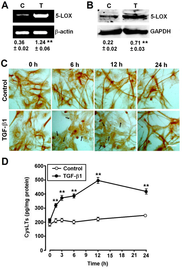 TGF-β1 induces 5-LOX expression and translocation, and increases the production of CysLTs in astrocytes. ( A, B ) RT-PCR and Western blotting results showing that 5-LOX mRNA (A) and protein expression (B) were increased in astrocytes after exposure to 10 ng/ml TGF-β1 for 24 h. Results are expressed as the ratios to β-actin (A) or GAPDH (B). C, control; T, TGF-β1. ( C ) Immunocytochemical examination reveals 5-LOX translocation to the nuclear envelope (arrows) in astrocytes after exposure to 10 ng/ml TGF-β1. Scale bar, 50 μm. ( D ) ELISA shows the production of CysLTs was significantly increased with a peak at 12 h after exposure to 10 ng/ml TGF-β1. Data are reported as mean ± S.E.M.; n = 4 (A and B) 8 (D); ** P