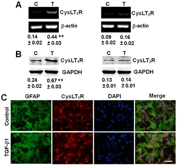 Effect of TGF-β1 on expression of CysLT receptors in astrocytes. ( A, B ) RT-PCR and Western blotting results showing that the mRNA (A) and protein expression (B) of CysLT 1 R, but not CysLT 2 R, in astrocytes increased after exposure to 10 ng/ml TGF-β1 for 24 h. Data are reported as mean ± S.E.M.; n = 4; ** P