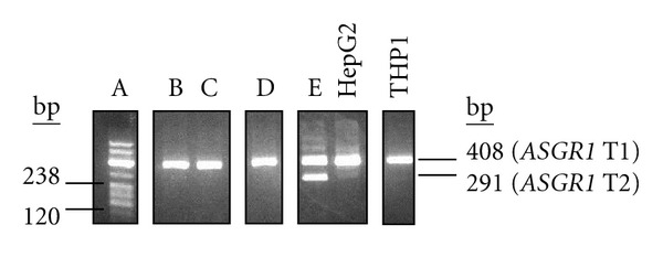 ASGR1 transcript profiles in different individuals. Nested PCR was used to detect ASGR1 transcripts T1 and T2 (first round primers A1CDSF1 + A1CDSR1; second round A1TEST2 + ASG1RTR). A product of 408 bp represented T1, present in RNA from the M + L cell fraction of five individuals (A–E) and also in HepG2 and THP1; a 291 bp product indicated the presence of T2 (individual E, and, very faintly, in HepG2). The RT-PCR product for individual A was coloaded with the DNA size standard (pBR322/ Msp I, 238 bp and 120 bp sizes indicated). Analysis was done using agarose gel electrophoresis. The figure is a composite of various data (indicated by individual gel windows).
