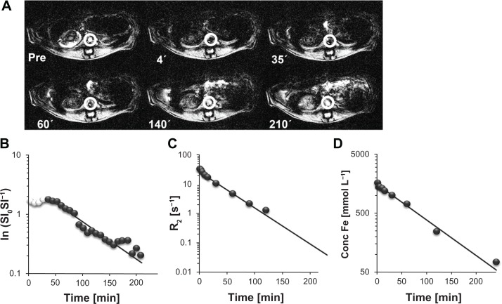 Comparison of different methods to determine the CDX–SPIO20 blood half-life. ( A ) T 2 *-weighted transversal MR images were acquired pre and post injection of CDX–SPIO20 application iv in rats and are shown here at representative time points. ( B ) Signal intensities pre (SI 0 ) and post injection (SI) of the aorta (white circles in A) were analyzed to obtain blood clearance. The first values (white spheres) with constant low signal intensities were not used for the fit. ( C ) R 2 relaxation rates of plasma samples taken from 3 minutes to 360 minutes were determined at 40°C and 1.41 T in a time-domain NMR. ( D ) The iron concentrations in the same plasma samples were measured by ICP–OES. Note: The values were plotted versus time and fitted by single-order kinetics. Abbreviations: CDX, carboxydextran; ICP-OES, inductively coupled plasma optical emission spectroscopy; iv, intravenous; MR, magnetic resonance; R, relaxation rate; SI, signal intensity; SPIO, superparamagnetic iron oxide nanoparticle.