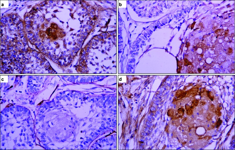 Immunohistochemical staining of basement membrane components, including laminin 1 (a), laminin 5 (b), collagen type IV (c) and fibronectin (d) in a granular cell ameloblastoma. ( a ) An intense staining of laminin 1 is found in the peripheral cells, central stellate shaped-like cells and granular cells. ( b ) A moderate-to-strong intensity of laminin 5 is seen in granular cells. ( c ) A strong expression of collagen type IV is detected at the basement membrane area surrounding tumor follicles. ( d ) A weak to moderate staining for fibronectin is observed in peripheral cells and central cells, whereas a moderate-to-strong staining is present in granular cells (immunostaining, original magnification: ×200).
