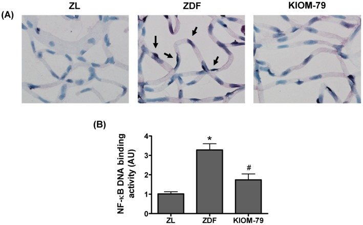 Effect of KIOM-79 on NF-κB activation. (A) Representative photomicrographs of retinal vessels from a normal Zucker lean rat (ZL), vehicle-treated ZDF rat (ZDF) and ZDF rat treated with KIOM-79 (KIOM-79). NF-κB activation (arrow) was determined by southwestern histochemistry. The sections were visualized by nitroblue tetrazolium chloride (NBT) and 5-bromo-4-chloro-3-indolyl phosphate (BCIP) substrate staining and counterstained with methyl green X200 magnification. (B) Analysis of NF-κB DNA binding activity by ELISA-based assay. KIOM-79 significantly inhibited nuclear NF-κB DNA binding activity (p