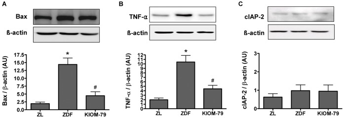 Protein expression of Bax (A), TNF-α (B) and cIAP-2 (C). Western blot analysis in retina tissue from a normal Zucker lean rat (ZL), vehicle-treated ZDF rat (ZDF) and ZDF rat treated with KIOM-79 (KIOM-79). Values in the bar graphs represent means ± SE, n = 8. *p