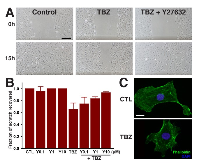 TBZ impedes migration of HUVECs in a wound scratch assay, but treatment with the Rho Kinase inhibitor Y27632 reverses TBZ's effects. (A) The effects of 1% DMSO-treated control versus 1% DMSO, 250 µM TBZ, and 1% DMSO, 250 µM TBZ, 10 µM Y27632. Scale bar, 200 µm. (B) quantifies the dose-dependent suppression of TBZ inhibition by Y27632. Error bars represent the mean ± 1 s.d. across 3 wells (1 of 3 trials). TBZ results in disorganization of actin stress fibers, as shown in (C) for 1% DMSO-treated control versus 1% DMSO, 250 µM TBZ-treated cells. Scale bar, 20 µm.
