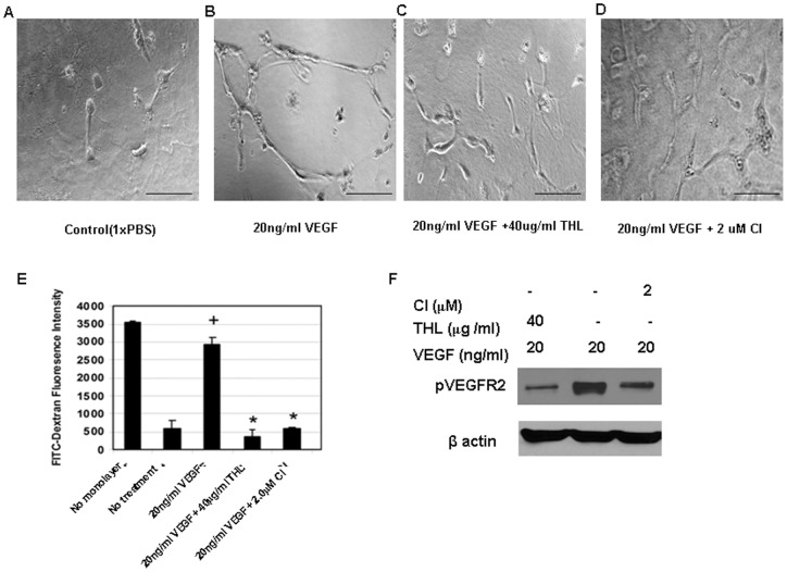 The effects of Triphala churna (THL) and chebulinic acid (CI) on vascular endothelial growth factor (VEGF) induced tube formation and permeability in human umbilical vein cells (HUVEC). In contrast to ( A ) control, ( B ) VEGF promotes tube formation in HUVEC. However, treatment with either ( C ) THL or ( D ) CI inhibits VEGF induced tube formation in HUVEC. ( E ) Similarly, VEGF induces significant permeability in HUVEC in comparison to untreated control (+, p