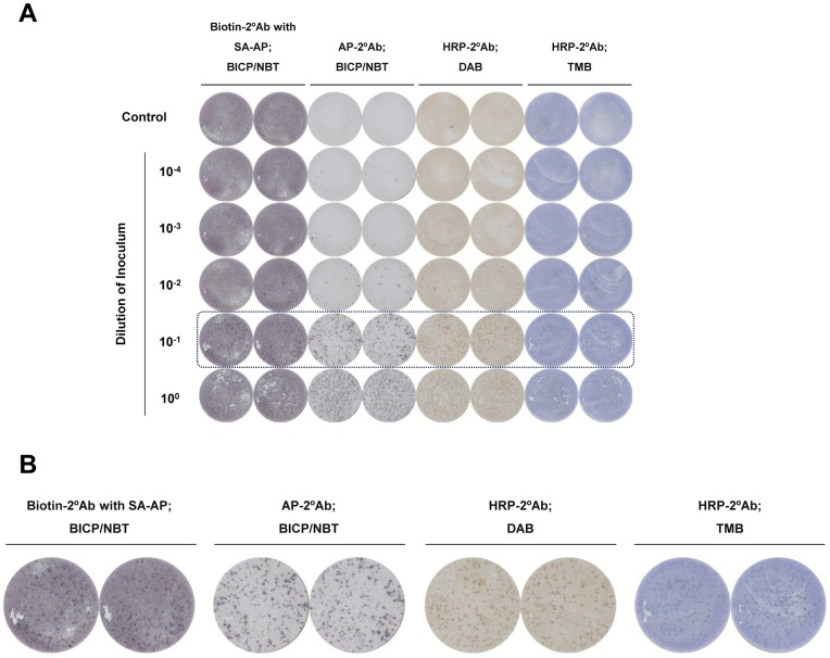 Comparison of colorimetric focus-forming assays using various secondary antibodies and chromogenic substrates. (A) Huh-7.5 cells inoculated with serial dilutions of HCV were immunostained with monoclonal anti-HCV core antibody and secondary antibodies conjugated with different enzymes, as indicated, followed by chromogenic development using various substrates, and image scanning by ELISpot reader. (B) A magnified view of the scanned image of the colorimetric focus-forming assay revealed that alkaline phosphatase-conjugated secondary antibody with BCIP/NBT yielded the best results, considering background and distinctness of the foci. Biotin-2°Ab, biotin-conjugated secondary antibody; SA-AP, streptavidin-conjugated alkaline phosphatase; AP-2°Ab, alkaline phosphatase-conjugated secondary antibody; HRP-2°Ab, horseradish peroxidase-conjugated secondary antibody; BCIP/NBT, 5-bromo-4-chloro-3-indolyl phosphate/nitro blue tetrazolium; DAB, 3,3′-diaminobenzidine; TMB, 3,3′,5,5′-tetramethylbenzidine.