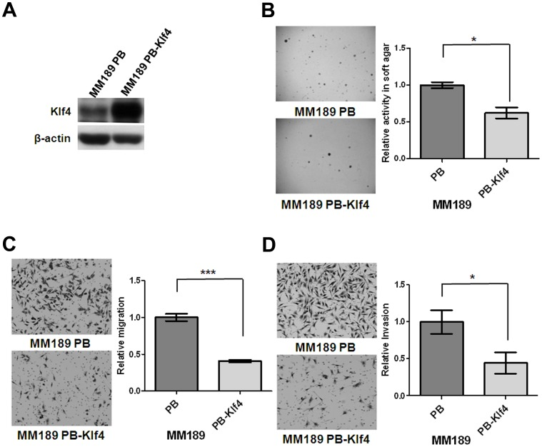 Ectopic Klf4 expression inhibited colony formation, migration and invasion. (A) Klf4 and β-actin protein levels were detected in murine HCC cell lines, MM189 with ectopic Klf4 expression (MM189 PB-Klf4) and its corresponding control (MM189 PB) by immunoblot assay. β-actin served as a loading control. (B) Representative anchorage-independent growth activity for MM189 cells with ectopic Klf4 expression (MM189 PB-Klf4) and its corresponding control (MM189 PB). The colonies were observed at lower magnification (40×) in the left panel. The relative activity was determined by normalizing the mean number of colonies in MM189 PB-Klf4 cells to that in MM189 PB cells. Bar, SE. *, p