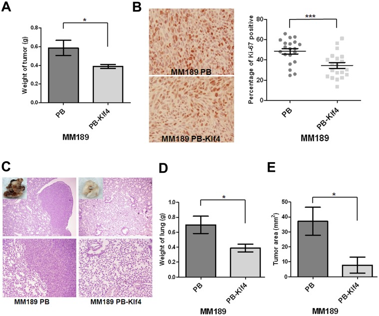 Klf4 suppressed tumor growth and lung colonization. (A) Quantification of the weight of the tumor lesions in mice (n = 7) subcutaneously injected with MM189 PB-Klf4 or MM189 PB cells. Bar, SE. *, p