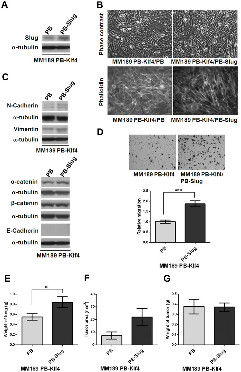 Ectopic Slug expression reversed Klf4-mediated phenotypes. (A) Slug protein level was detected in HCC cell lines, MM189 with only ectopic Klf4 (MM189 PB-Klf4/PB) and MM189 with both Klf4 and Slug expression (MM189 PB-Klf4/PB-Slug) by immunoblot assay. α-tubulin served as a loading control. (B) Observations of morphological change by the simultaneous ectopic expression of Slug and Klf4 in MM189 cells from epithelial- to mesenchymal-like shape under phase contrast microscopy with 200× magnification (upper panel). Cytoskelton F-actin proteins were stained with rodamine-phalloidin and viewed under fluorescence microscope with 630× magnification (lower panel, shown in grey mode). (C) Immunoblot analysis of mesenchymal and epithelial proteins in MM189 PB-Klf4/PB and MM189 PB-Slug/PB-Klf4 cells. α-tubulin served as a loading control. (D) Representative data shows the relative migration activity of MM189 cells expressing Klf4/Slug (MM189 PB-Klf4/PB-Slug) and its vector control (MM189 PB-Klf4/PB). The migrated cells were observed at magnification (100×) in the upper panel. The relative migration activity was defined by normalizing the mean of migrated cells/per field in MM189 PB-Klf4/PB-Slug cells to that in MM189 PB-Klf4/PB cells. Bar, SE. ***, p
