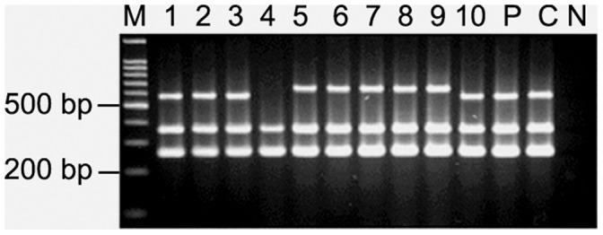 "Multiplex PCR for vacA subtypes and cagA gene for PG218. M, 100 bp marker; lanes 1–10, single colonies isolated from PG218 and ""P"" denotes pooled DNA sample; C, Positive control (26695); N, Negative control ( E. coli DNA). All the colonies isolated from this individual were cagA + and carried vacA s1 allele. Evidence of mixed infection was detected in the vacA middle region only. Lanes 1–3 and 10 yielded amplicon specific for m1, lanes 5–9 produced amplicon specific for m2 while in lane 4, no amplicon was obtained for vacA mid-region using this specific primer set."