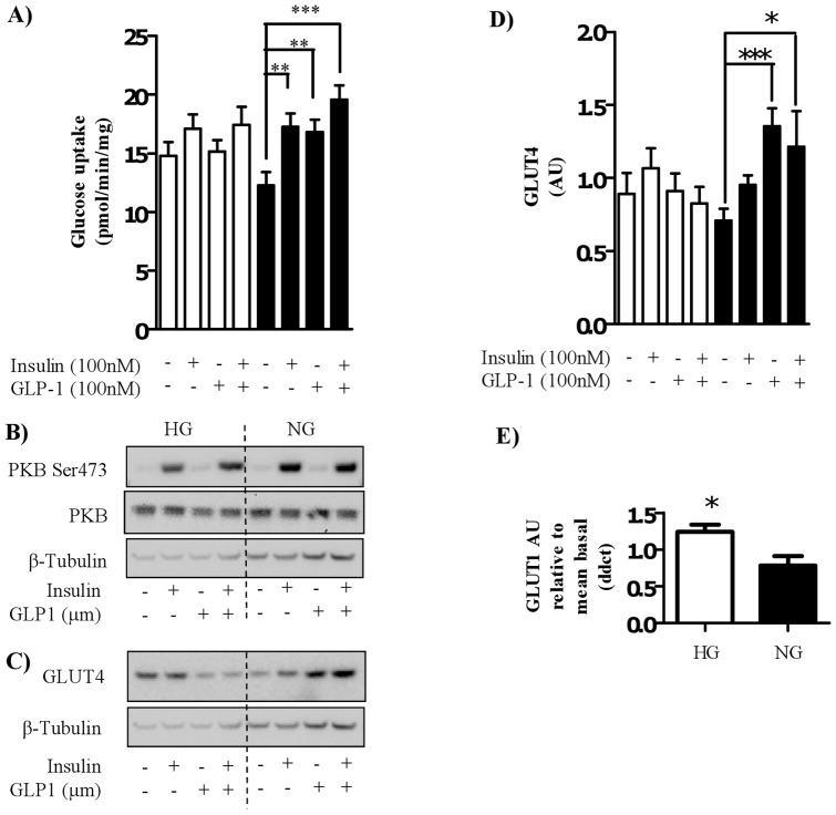 Effect of GLP-1 and/or insulin on glucose uptake and GLUT4 protein. Satellite cells were isolated from lean, healthy males (n = 6), and differentiated in either high glucose (22 mM, open bars) or normal glucose (5 mM, black bars) media for seven days. Myocytes were treated with either 100 nM insulin and/or 100 nM GLP-1 for 30 minutes before either (A) assessing 2-deoxyglucose uptake or (B) immunoblotting to assess phosphorylation status of PKB/Akt and total protein amount of PKB/Akt or (C) immunoblotting to assess the protein level of GLUT4. The effect of high (open bars) and normal (black bars) glucose on GLUT4 protein level was quantified ((D); n = 6), normalized to total protein and expressed as arbitrary units. Significant changes from basal levels are indicated by * (P