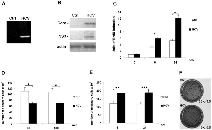 HCV affects proliferation, anchorage-independent growth, adhesion and migration of Huh7.5.1 cells. ( A ) RT-PCR for the 5′UTR in control (Ctrl) and HCV-infected Huh7.5.1 cells (HCV). ( B ) Protein expression levels of HCV core ( upper panel ), HCV NS3 ( middle panel ) and beta-actin (loading control, lower panel ) in control (Ctrl) and HCV-infected Huh7.5.1 cells (HCV). Immunoblots are representative of at least five independent experiments. ( C ) Proliferation rate was evaluated as incorporation of BrdU performed at three different time points: 0, 6 and 24 hrs. Quantitative data of the analysis of BrdU incorporation was converted in unit of induction with respect to the Ctrl considered as 1. Histograms are the mean value ±SD ( bars ) of five independent experiments. *P