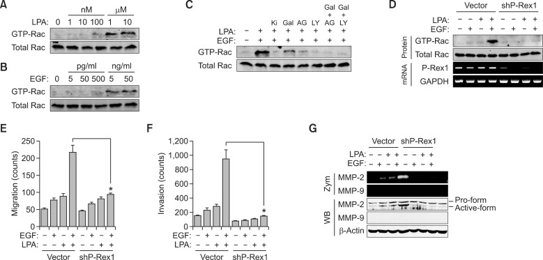 P-Rex1 plays an essential role in synergism of Gβγ- and PI3K-dependent migration. LPA- and EGF-induced dose-dependent activation of Rac for 5 min was determined by measuring the GTP form of Rac as described in 'Materials and methods' (A, B). (C) A549 cells were pretreated for 20 min with various inhibitors such as Ki16425 (2 nM), gallein (10 µM), AG1478 (100 nM), LY294002 (10 µM) or gallein together with AG1478 or LY294002, followed by stimulation with LPA (10 nM) and EGF (50 pg/ml) for 5 min. (D) After knock-down of P-Rex1, activation of Rac was determined by measuring the GTP form of Rac and expression of P-Rex1 was determined by RT-PCR. (E) Motility after silencing P-Rex1 was determined by migration assay for 10 h. (F) LPA (10 nM)- and EGF (50 pg/ml)-induced cancer cell invasion for 24 h was measured as described in 'Materials and methods' section. * P