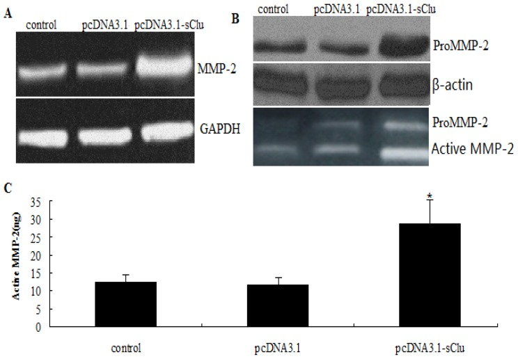 Effect of sCLU overexpression on MMP-2 expression and activity. ( A ) HepG2 cells were transfected with pc.DNA3.1-sCLU or pcDNA3.1 for 36 h. Representative images showing expression of MMP-2 mRNA in transfected cells, as determined by RT-PCR; ( B ) Western blot analysis to evaluate pro-MMP-2 protein expression in pc.DNA3.1-sCLU or pc.DNA3.1-transfected HepG2 cells. Blot was reprobed with β-actin antibody to verify the equal loading of proteins; ( C ) Gelatin zymogram showing activity of pro-MMP-2 and active MMP-2 in pc.DNA3.1-sCLU or pc.DNA3.1-transfected HepG2 cells. Columns, mean of quadruple experiments; bars, SD. * p