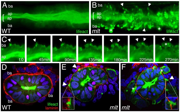Actin-rich protrusions in invasive epithelial cells of the mlt intestine. (A, B) Full thickness 3-D rendering of sagittal confocal sections through the intestine of 78 hpf wild type (WT) (A) and mlt (B) larvae. Actin is labeled by transgenic Lifeact-GFP expression (green). (A) In WT, the majority of the label is present in the epithelial cell apical brush border (bracket). (B) In mlt , actin-rich invadopodia-like protrusions of the basal epithelial cell membrane are detected (arrows), in addition to brush border actin (bracket). (C) Time lapse analysis of protrusion development. Single sagittal confocal scans through the intestine of a mlt larva beginning at 74 hpf. Basal invadopodia-like protrusions (arrowheads) precede cell invasion, which is first detected at 135 min. Asterisks mark invasive cells at 270 min (see also B). (D–F) Histological cross-sections through the intestine of 74 hpf immunostained mlt larvae. Basement membrane is labeled red (laminin immunostain) and actin labeled green (GFP immunostain in Lifeact-GFP transgenics). Nuclei stained blue with DAPI. Actin rich protrusions in mlt co-localize with sites of basal lamina degradation (arrowheads and insets E, F). During progression of the phenotype epithelial cells invade the tissue stroma through degraded regions of the basal lamina (asterisks in F). ap, apical epithelial cell border; ba, basal cell epithelial cell border.