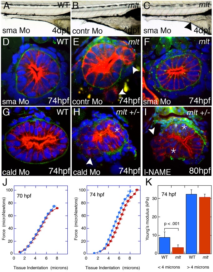 Smooth muscle contraction drives epithelial invasion but does not alter tissue rigidity. (A–C) Lateral views of live 5 dpf larvae injected with Sma or control morpholino. (A) Sma knockdown has no effect on WT intestinal morphology. (B) Control morpholino injection in mlt . (C) Sma knockdown rescues invasion in mlt . Residual invasive cells persist in this Sma deficient mlt larva (arrowhead). (D–I) Histological cross-sections through the posterior intestine of 74 hpf WT and mlt larvae immunostained with anti-keratin (red) and anti-laminin (green) antibodies. (D) WT. (E, F) mlt larvae injected with control (E) and Sma (D, F) morpholinos. Invasive cells in mlt (arrowheads, E) are rescued by Sma knockdown. (G, H) Injection of a morpholino targeting the high molecular weight isoform of Caldesmon (cald) has no effect on WT intestinal morphology but induces invasion (arrowhead) and stratification (asterisk) in an mlt heterozygote. (I) Treatment of an mlt heterozygote with L-NAME causes invasion (arrowhead) and epithelial stratification (asterisk). (J) Force displacement measurements show identical compliance of intestines dissected from mlt and WT larvae before the phenotype develops at 70 hpf, and a modest increase in compliance at the outer surface of the intestine (