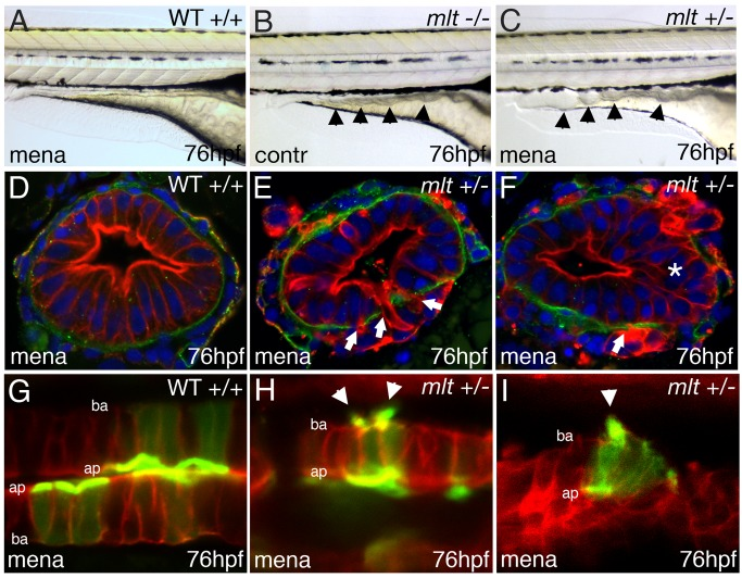 Oxidative stress induces invasive remodeling in mlt heterozygous larvae. (A–C) Lateral images of live WT (A), mlt homozygous (B), and mlt heterozygous larvae (C). The WT and mlt heterozygous larvae received 3 h of treatment with Menadione beginning at 73 hpf. Menadione treated heterozygote (C) larvae have an intestinal phenotype (arrowheads) resembling the untreated mlt homozygous larvae (B). (D–F) Corresponding histological cross-sections (representative of larvae in A, C) with intestinal epithelial cells labeled red (anti-keratin immunostain) and basement membrane in green (anti-laminin immunostain). Menadione causes epithelial cell invasion (arrows) and stratification (asterisks) in mlt heterozygous larvae (E, F) but does not affect epithelial architecture in the WT intestines (D). (G–I) Sagittal confocal scans through the intestine of WT and mlt heterozygotes treated with menadione. Both larvae express LifeAct-GFP in a subset of intestinal epithelial cells. Actin-rich invadopodia-like protrusions (green) are seen arising from the basal epithelial cell membrane of menadione treated heterozygous larvae (arrowheads, H, I). Actin is located nearly exclusively in the apical brush border of WT epithelial cells (G): Red -membrane mCherry; ba, basal epithelial cell border; ap, apical epithelial cell border.