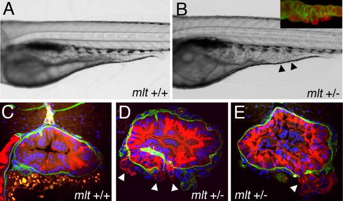 Activation of oncogenic signaling enhances sensitivity of mlt heterozygotes to oxidative stress. (A, B) Lateral views of live, menadione treated 5 dpf axin mutant larvae that express mutant KRAS in the intestinal epithelium ( Kras-axin ). (A) Hypertrophy of the intestinal epithelium in a Kras-axin larva that is homozygous for the wildtype myh11 allele (mlt +/+) larvae is unchanged by treatment with menadione. (B) Menadione treatment causes pronounced cystic expansion of the posterior intestinal epithelium of the Kras-axin mlt heterozygote (arrowheads) that resembles the homozygous mlt phenotype. Inset, immunolabeling of the basal lamina (laminin, green) and epithelium (cytokeratin, red) shows epithelial cell invasion through the basement membrane. (C–E) Histological cross-sections through the intestine of immunostained larvae show invasive cells in menadione treated Kras-axin mlt heterozygotes (arrowheads; D, E). Invasion is not detected in menadione-treated Kras-axin mlt larvae that are homozygous for the wildtype myh11 allele (C).