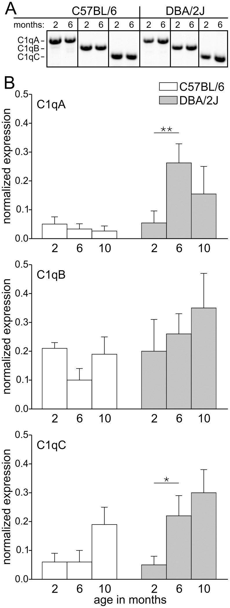 C1qA and C1qC gene expression is upregulated in photoreceptor cells of aging DBA/2J mice. (A) Agarose gels showing PCR fragments that represent the gene expression of C1qA, C1qB and C1qC in the retinae of 2 and 6 months old DBA/2J and C57BL/6 control mice. (B) The expression of C1qA, C1qB and C1qC in photoreceptor cells of 2, 6, and 10 months old DBA/2J mice and age-matched C57BL/6 control mice was compared with PCR. For each age, cDNA obtained from three animals was subjected to triplicate PCR amplifications (n = 9). Statistically significant differences are indicated by asterisks (* p