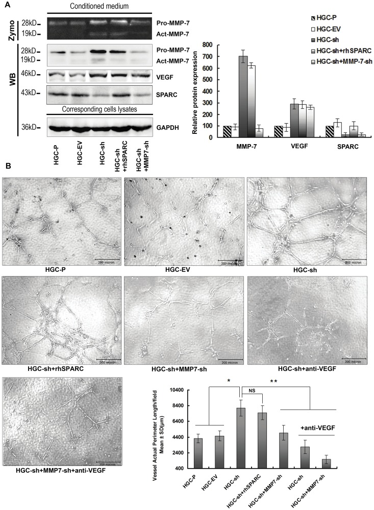 Knock-down of SPARC expression in HGC-27 cells promotes angiogenesis via up-regulated VEGF and MMP-7 expression. ( A ) Conditioned media from HGC-P, HGC-EV, HGC-sh with or without rhSPARC (0.3 µg/ml) and HGC-sh+MMP7-sh cells were concentrated under the same conditions. β-casein zymography was conducted for MMP-7 activity. Western blotting analysis was performed for MMP-7, SPARC and VEGF protein levels in conditioned media. The cells were collected and lysates probed with GAPDH antibody to calibrate total amount of the respective proteins. Columns are means (±s.d.) of triplicate experiments. ( B ) In vitro angiogenesis: To confirm that SPARC expression-mediated anti-angiogenic effects are due to altered MMP-7 and VEGF expression rather than to the expression of SPARC itself, harvested supernatant from HGC-sh cells was added to 0.3 µg/ml rhSPARC. Supernatants from both of HGC-sh and HGC-sh+MMP7-sh cells with neutralising antibody to VEGF were also used in co-culture assay (anti-VEGF = neutralising antibody to VEGF). HUVECs were seeded in Matrigel-coated 96-well plates incubated with conditioned media. The effects of conditioned media on the pre-formed tubes of HUVECs were analysed, and the tube length was measured. Tube length data shown are the means (±s.d.) of quadruplicate determinations from three separate experiments. *P