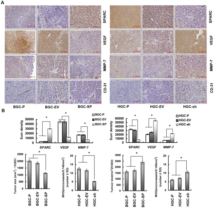Overexpression of SPARC in gastric cancer cells inhibits tumour development and vascularisation in nude mice. ( A ) Paraffin-embedded sections of xenografted tumours were used for immunohistochemical analysis of SPARC, MMP-7, VEGF, and CD-31. ( B ) Sections were stained with a monoclonal antibody against human SPARC, VEGF, MMP-7. Sum densities were calculated and analyzed by IPP 6.0. Columns are means (±s.d.) of quadruplicate determinations from six mice in each group. *P