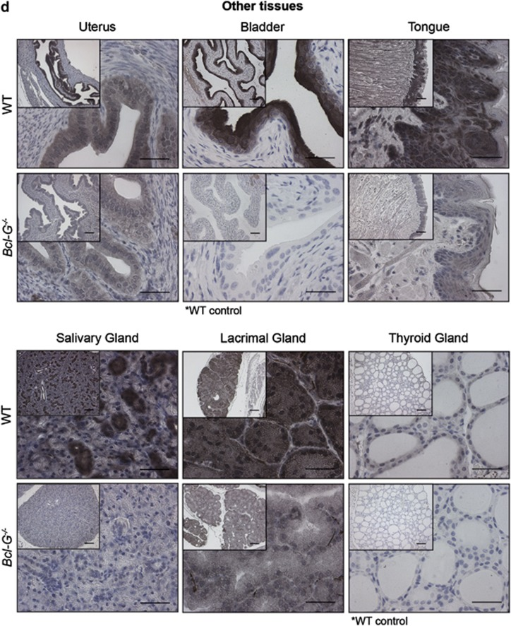 Cell type-specific expression of Bcl-G revealed by immunohistochemical staining. The Bcl-G-specific mAb 2E11 was used for immunohistochemical staining of tissue sections from the ( a) male reproductive tract, ( b ) GI tract, ( c ) respiratory tract and ( d ) other organs of WT and Bcl-G −/− (negative control) mice. Biotinylated goat anti-rat IgG antibodies were used as the secondary reagent followed by peroxidase conjugation and detection with the DAB reagent (Vector Laboratories). Tissue sections were counterstained with hematoxylin. Representative photomicrographs are shown at × 100 (bar represents 100 μ m) and × 400 magnification (bar represents 40 μ m). The asterisks indicate cases where tissues from Bcl-G −/− mice were unavailable and WT tissues stained only with secondary antibodies were used instead as negative controls