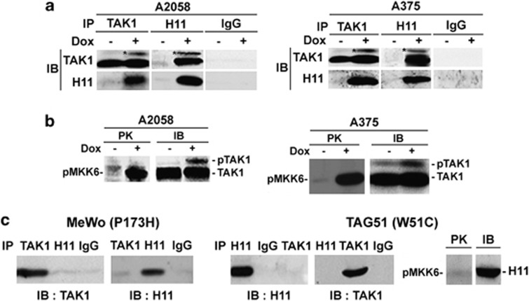 TAK1 is activated by wild-type H11/HspB8 but not its non-killing mutants. ( a ) Pull-down assays of untreated and Dox-treated (5 μ g/ml; 3 days) stably transfected A375 and A2058 cells with H11/HspB8 or TAK1 antibodies or preimmune (Pre) IgG. ( b ) Immunocomplex PK assay of cell extracts as in ( a ) using TAK1 antibody and the TAK1 substrate MKK6 (PK). Kinase precipitates were blotted with TAK1 antibody (IB). ( c ) TAK1 was not activated in reciprocal pull-down assay as in ( a ) and immunocomplex PK assay as in ( b ) but using protein extracts from MeWo and TAG51 cells that respectively express the non-killing H11/HspB8 mutants, P173H and W51C