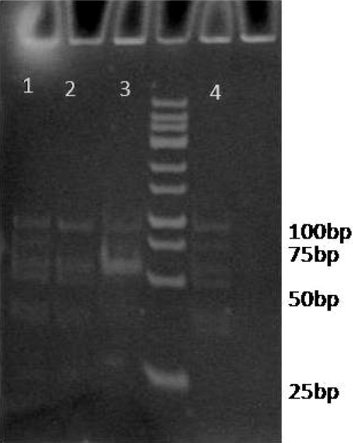Digestion of PCR amplified ApoE gene with HhaI restriction enzyme Lanes 1 and 4 show heterozygote E3/E4 genotype (91, 72, 48, and 53 bp bands). Lanes 2 and 3 show homozygote E3/E3 genotype (91, 48, and 53 bp bands).
